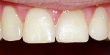 Жалоба на эстетическую неудовлетворенность передних зубов фото после лечения