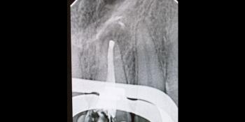 Апикальный периодонтит (киста), результат лечения фото после лечения