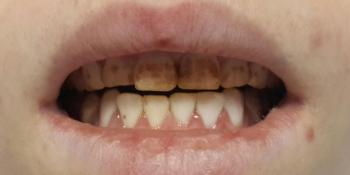 Изготовление композитных виниров на 4 передних зуба фото до лечения