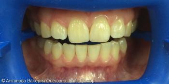 Чистка + отбеливание зубов системой ZOOM4, до и после фото до лечения