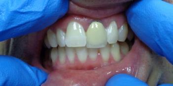 Отбеливание зубов лампой Zoom фото после лечения