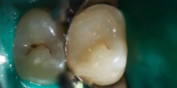 Лечение зуба под анастезией с применением коффердама фото после лечения
