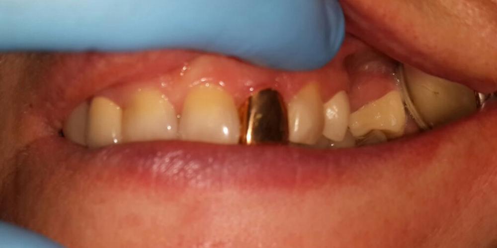 Мостовидный протез из металлокерамики, восстановление 2 зубов