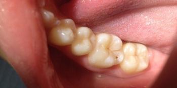 Результат лечения поверхностного кариеса жевательного зуба фото до лечения
