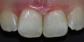Лечение зубов и эстетическая реставрация, реакция на холод фото после лечения