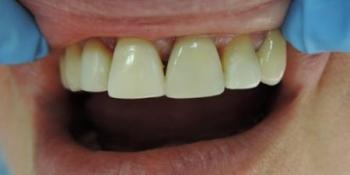 Реставрация зубов (виниры) фото после лечения