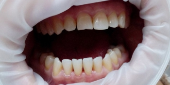 Результат снятия зубного камня ультразвуком фото после лечения