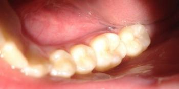Результат лечения поверхностного кариеса жевательного зуба фото после лечения