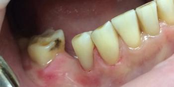 Лечение неосложненного кариеса дентина эстетической реставрацией фото после лечения