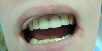 Реставрация 2 зубов светоотверждаемыми композитами фото после лечения