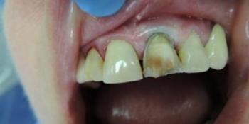 Реставрация зубов (виниры) фото до лечения