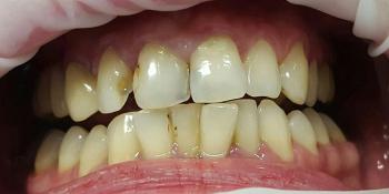 Лечение кариеса и реставрация двух передних зубов фото до лечения