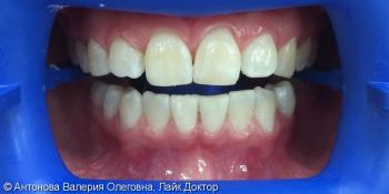 Чистка + отбеливание зубов системой ZOOM4, до и после фото после лечения