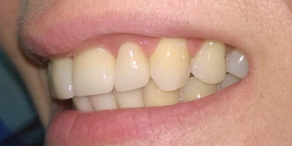 Фотографии результата с другого ракурса Цельнокерамические коронки e-max на передние зубы