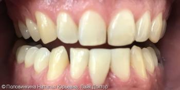 Коррекция формы зубов (резцов) с закрытием промежутка фото после лечения