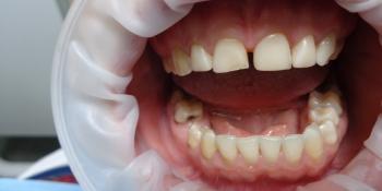 Реставрация зубов композитными винирами фото до лечения