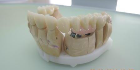 На время приживления имплантов пациенту были установлены временные коронки из пластмассы. Временные коронки несут в себе сразу несколько функций: защита зуба от внешних воздействий, сохранение функции зубов, предотвращение сдивигания зубного ряда, конечно же сохранение презентабельного внешнего вида, а также предотвращение деформации десны.  После установки имплантов, через 5 месяцев, установлены формирователи десны. Сложный случай с имплантацией и протезированием
