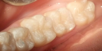 Лечение кариеса 4 зубов в одно посещение фото после лечения