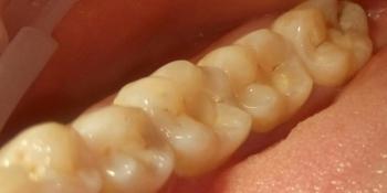 Лечение кариеса 4 зубов в одно посещение фото до лечения