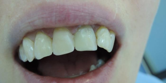 Эстетическая реставрация скола зуба фото после лечения