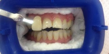 Отбеливание зубов Zoom AP с последующей реставрацией переднего зуба фото до лечения