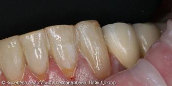 Лечение кариеса 33 зуба, клиновидный дефект результат до и после фото после лечения