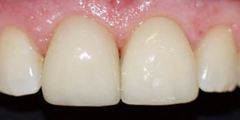 Преображение передних зубов керамическими винирами фото после лечения