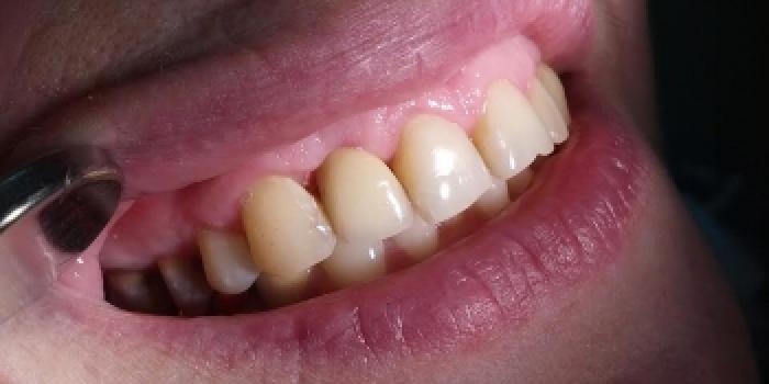 Имплантация зубов Конмет, коронка из металлокерамики фото после лечения