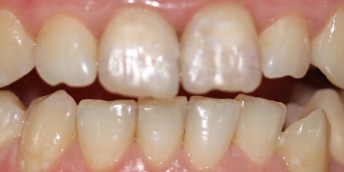 Отбеливание двух передних зубов фото после лечения