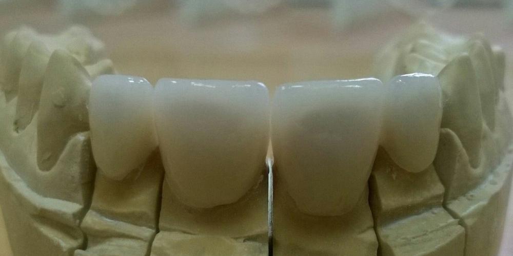 Коронки на модели Цельнокерамические коронки e-max на передние зубы