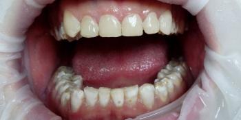 Эстетическая реставрация зубов композитными винирами фото после лечения