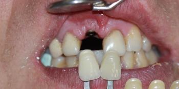 Имплантация переднего зуба и металлокерамическая коронка фото до лечения