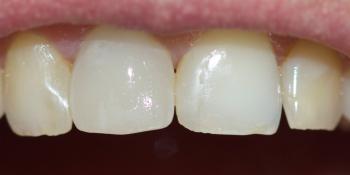 Замена ранее установленной коронки на переднем зубе фото после лечения