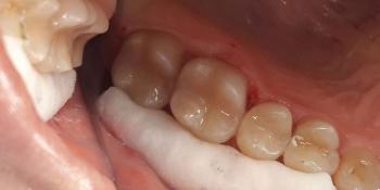 Результат эстетической реставрации жевательных зубов фото после лечения