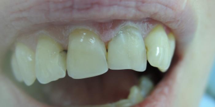 Эстетическая реставрация скола зуба фото до лечения