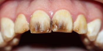 Реставрация керамическими винирами передних зубов фото до лечения