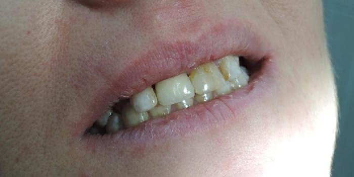 Одномоментная имплантация зубов с последующим протезированием, импланты MIS фото после лечения