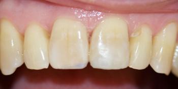 Реставрация переднего зуба композитом фото после лечения