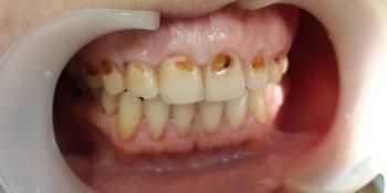 Лечение и художественная реставрация передних зубов фото до лечения