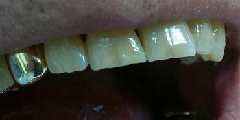 Результат реставрации скола режущего края зуба композитом фото после лечения