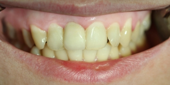 Восстановление переднего зуба имплантатом и коронкой фото после лечения