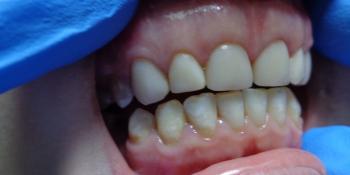Реставрация зубов композитными винирами фото после лечения