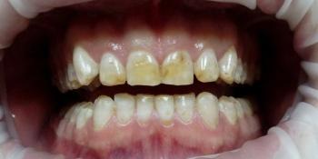 Эстетическая реставрация зубов композитными винирами фото до лечения