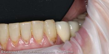 Лечение кариеса 33 зуба, клиновидный дефект результат до и после фото до лечения