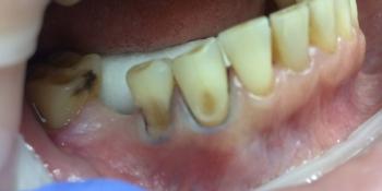 Лечение неосложненного кариеса дентина эстетической реставрацией фото до лечения