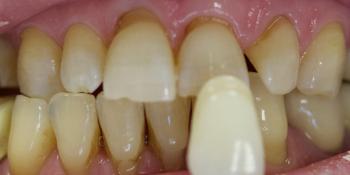 Керамические виниры без препарирования фото до лечения