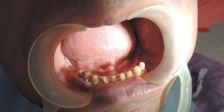 После успешного заживления послеоперационных ран и снятия швов доктор продолжил подготовку к протезированию.  В частности, были пролечены все зубы, нуждавшиеся в эндодонтическом лечении – всего 9 зубов на нижней челюсти и 5 зубов на верхней челюсти. Сложный случай с имплантацией и протезированием